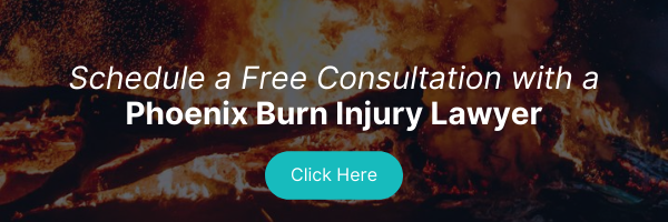 schedule a free consultation with a phoenix burn injury lawyer
